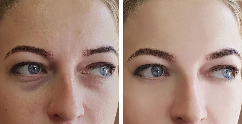 ניתוח עפעפיים לפני ואחרי תמונה