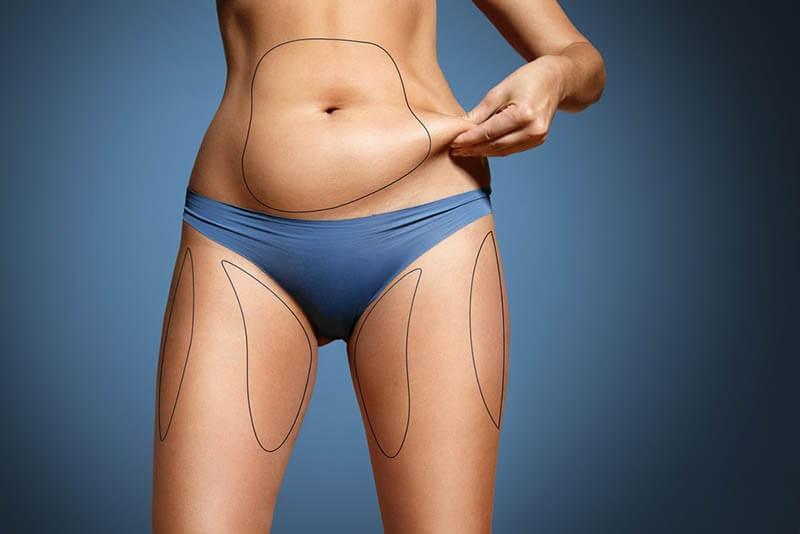 ניתוח שאיבת שומן - שיטות, סיכונים, למי מתאים, החלמה