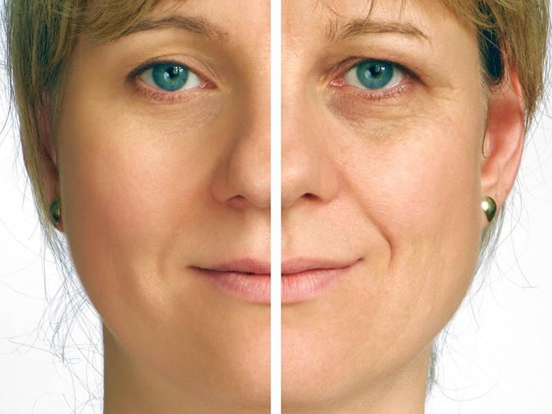 מתיחת פנים תמונה לפני ואחרי