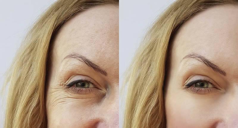 חומצה היאלורונית לפני ואחרי תמונה