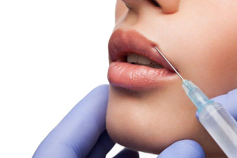 עיבוי שפתיים מילוי