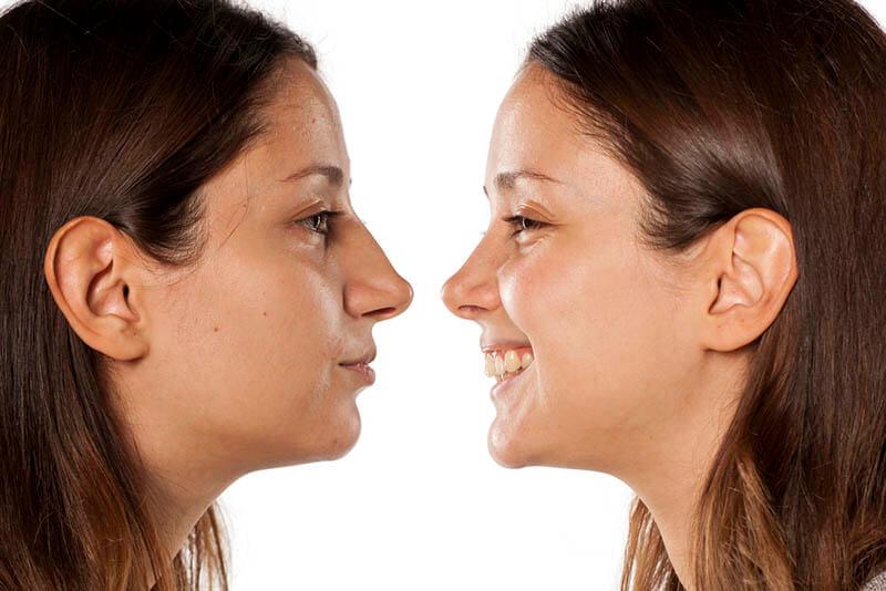 פיסול אף ללא ניתוח תמונה לפני ואחרי